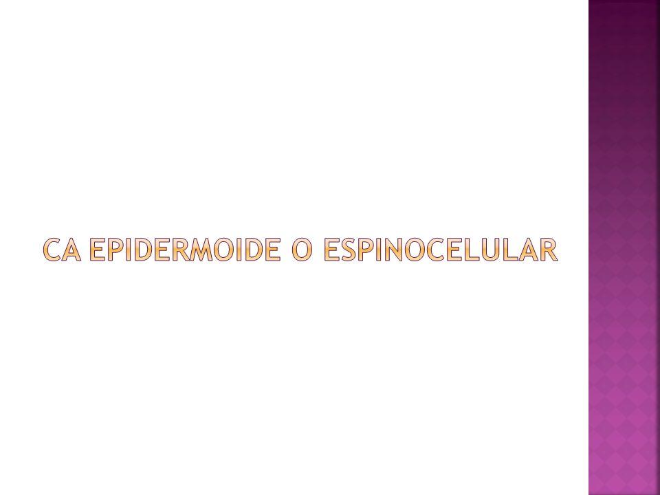 CA EPIDERMOIDE O ESPINOCELULAR