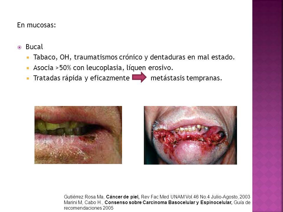 Tabaco, OH, traumatismos crónico y dentaduras en mal estado.