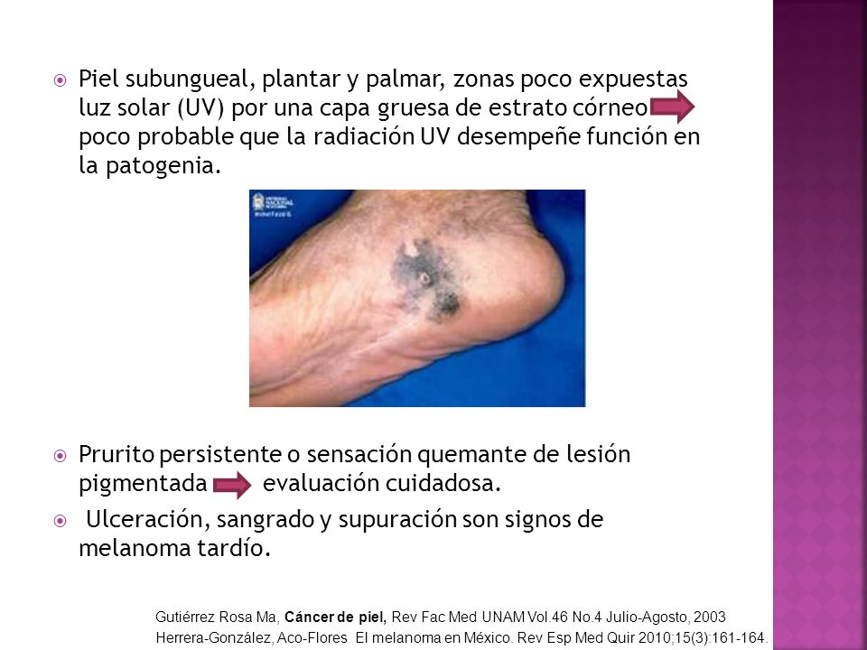 Ulceración, sangrado y supuración son signos de melanoma tardío.