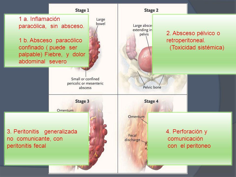 1 a. Inflamación paracólica, sin absceso.