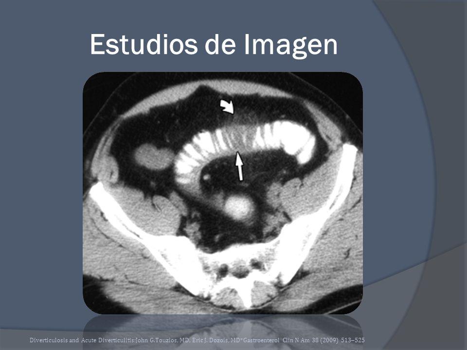 Estudios de Imagen Diverticulosis and Acute Diverticulitis;John G.Touzios, MD, Eric J.