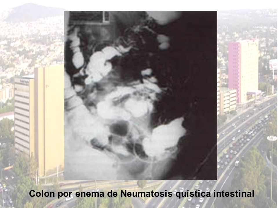Colon por enema de Neumatosis quística intestinal