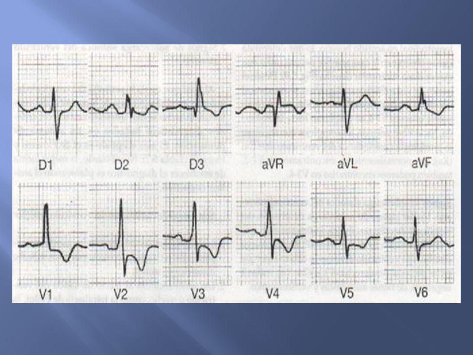 ÂQRS +90° Dilatación del ventrículo derecho: ondas R altas en v1 y v2