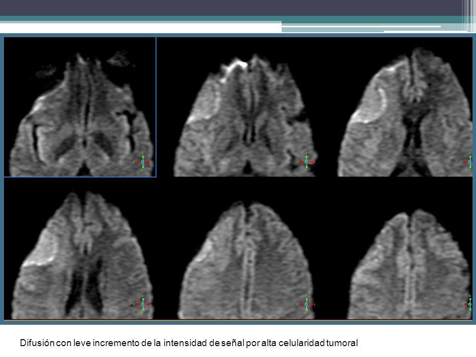 Difusión con leve incremento de la intensidad de señal por alta celularidad tumoral