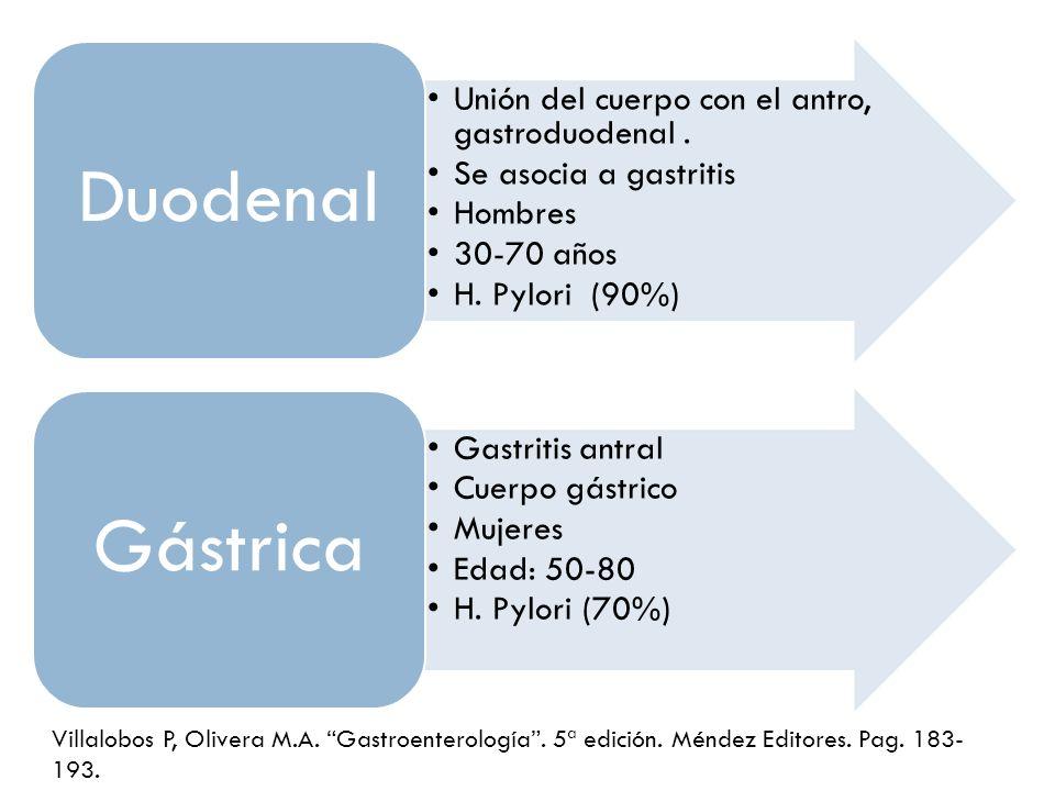 DuodenalUnión del cuerpo con el antro, gastroduodenal . Se asocia a gastritis. Hombres. 30-70 años.