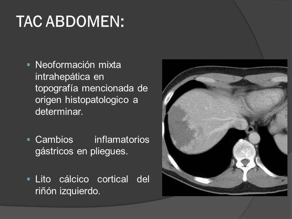 TAC ABDOMEN: Neoformación mixta intrahepática en topografía mencionada de origen histopatologico a determinar.