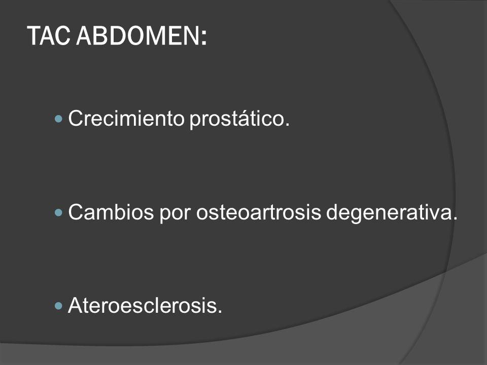 TAC ABDOMEN: Crecimiento prostático.