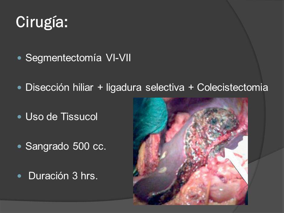 Cirugía: Segmentectomía VI-VII