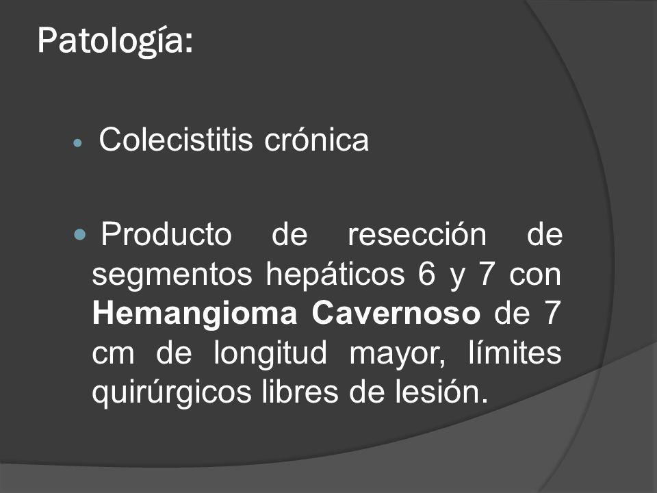 Patología: Colecistitis crónica.