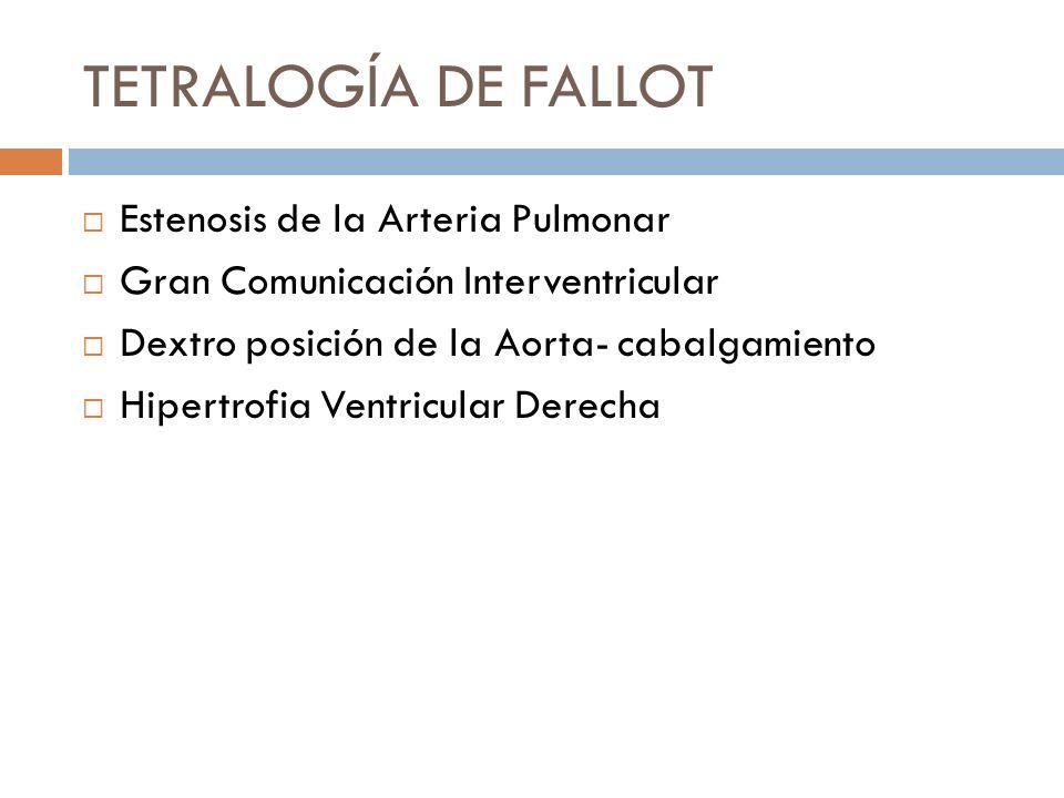 TETRALOGÍA DE FALLOT Estenosis de la Arteria Pulmonar