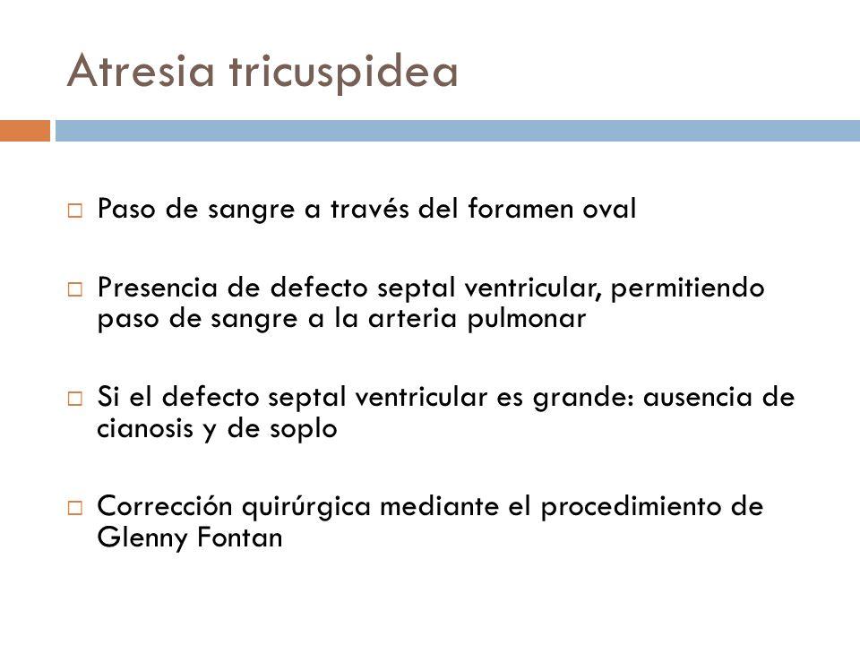 Atresia tricuspidea Paso de sangre a través del foramen oval