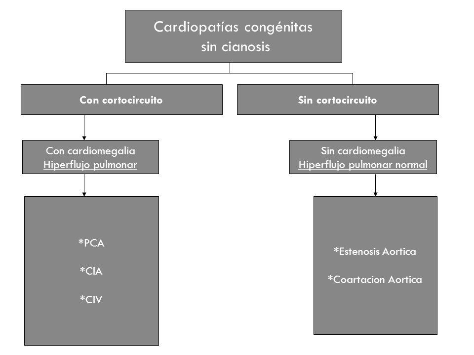 Cardiopatías congénitas sin cianosis