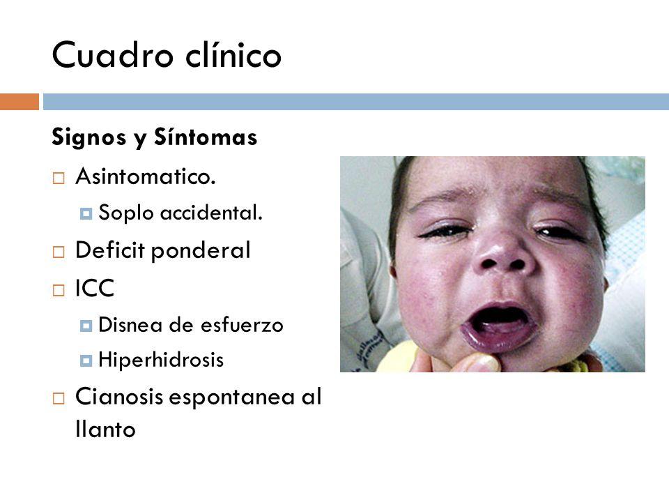 Cuadro clínico Signos y Síntomas Asintomatico. Deficit ponderal ICC