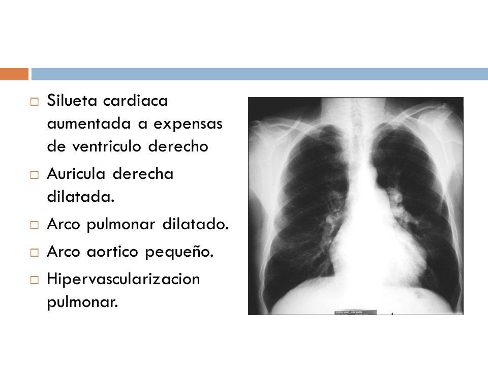 Silueta cardiaca aumentada a expensas de ventriculo derecho