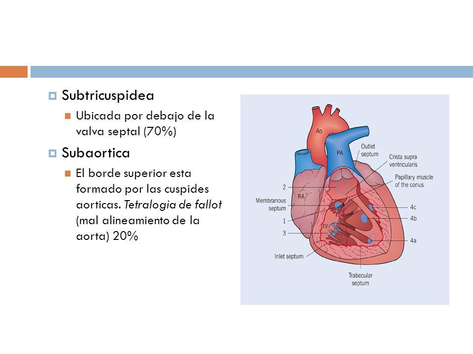 Subtricuspidea Subaortica Ubicada por debajo de la valva septal (70%)