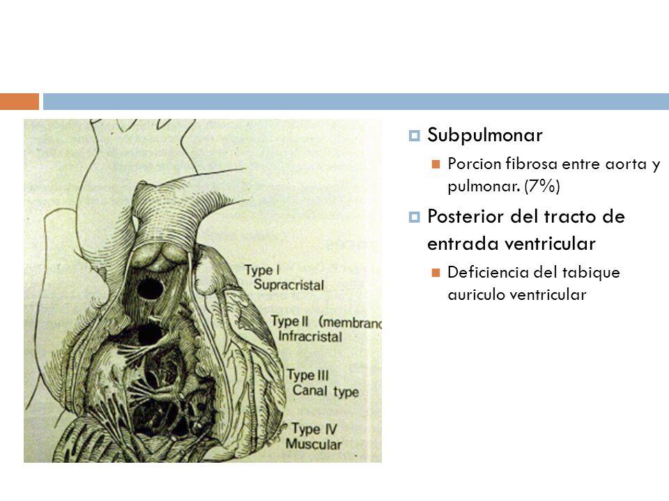 Posterior del tracto de entrada ventricular