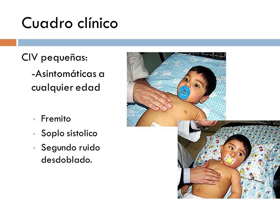 Cuadro clínico CIV pequeñas: -Asintomáticas a cualquier edad Fremito