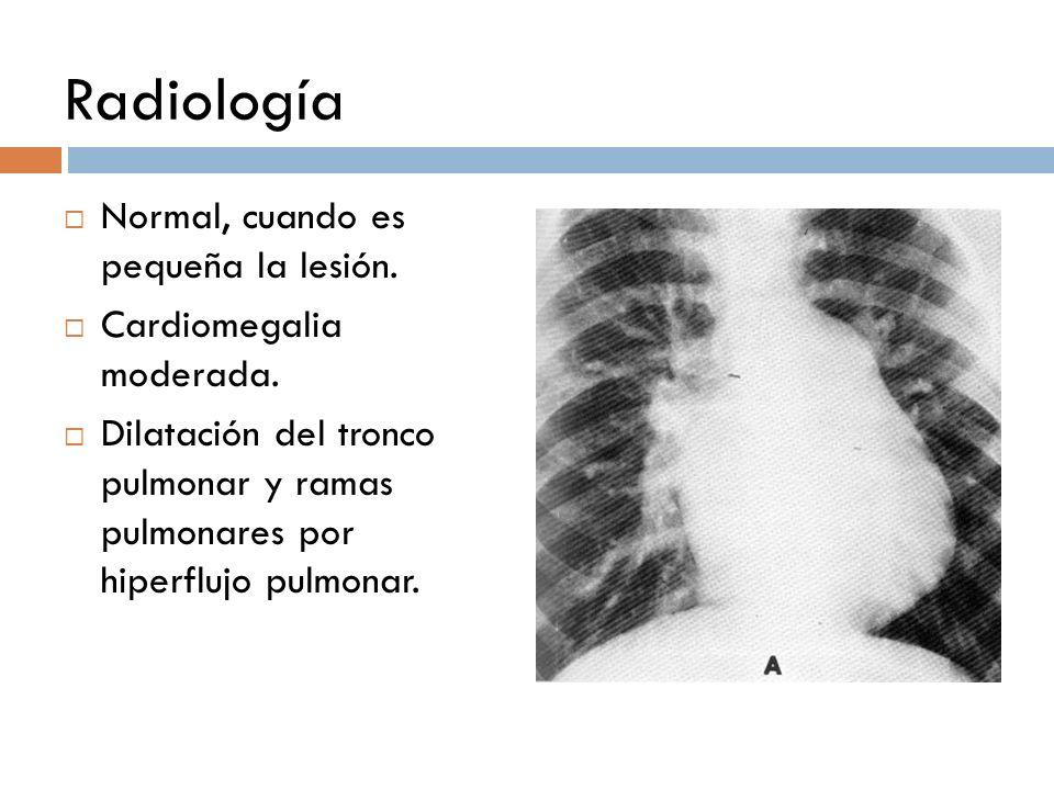 Radiología Normal, cuando es pequeña la lesión.