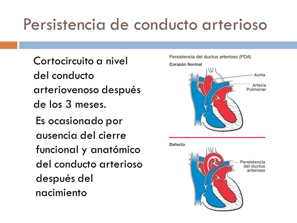 Persistencia de conducto arterioso