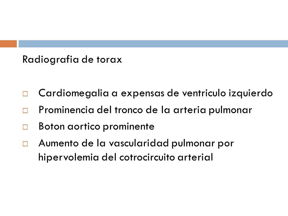 Radiografia de torax Cardiomegalia a expensas de ventriculo izquierdo. Prominencia del tronco de la arteria pulmonar.