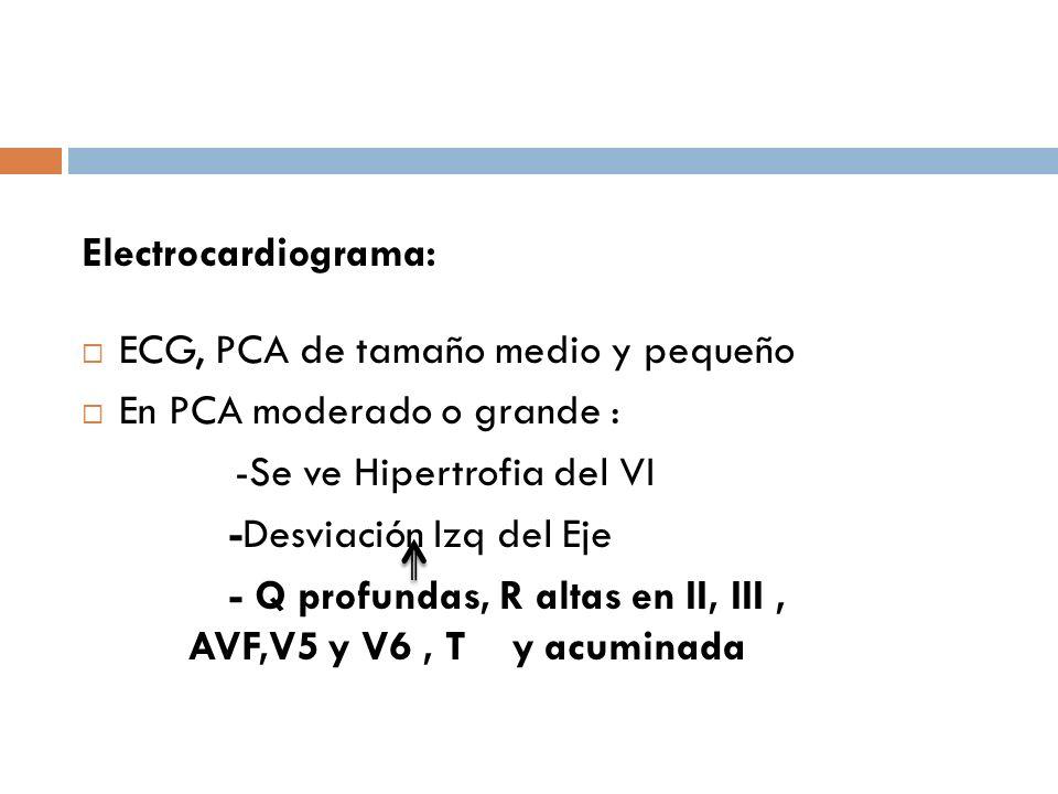 Electrocardiograma: ECG, PCA de tamaño medio y pequeño. En PCA moderado o grande : -Se ve Hipertrofia del VI.
