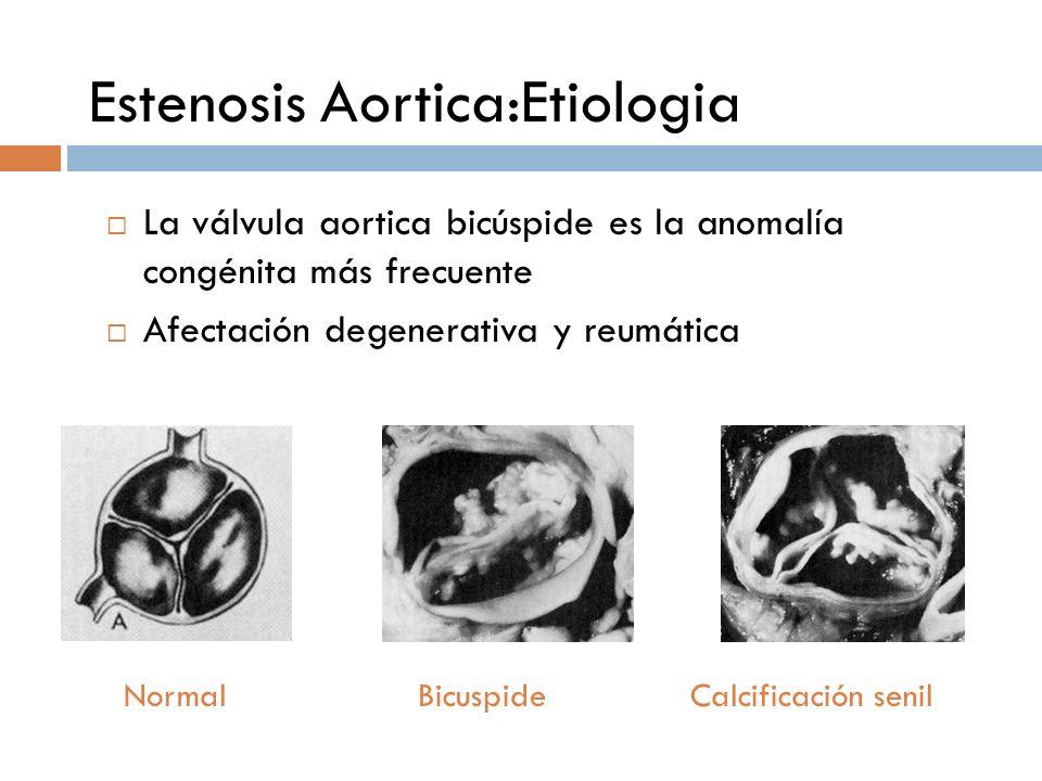 Estenosis Aortica:Etiologia