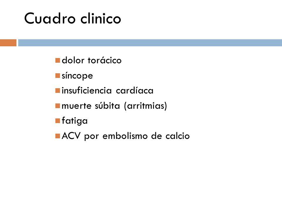 Cuadro clinico dolor torácico síncope insuficiencia cardíaca