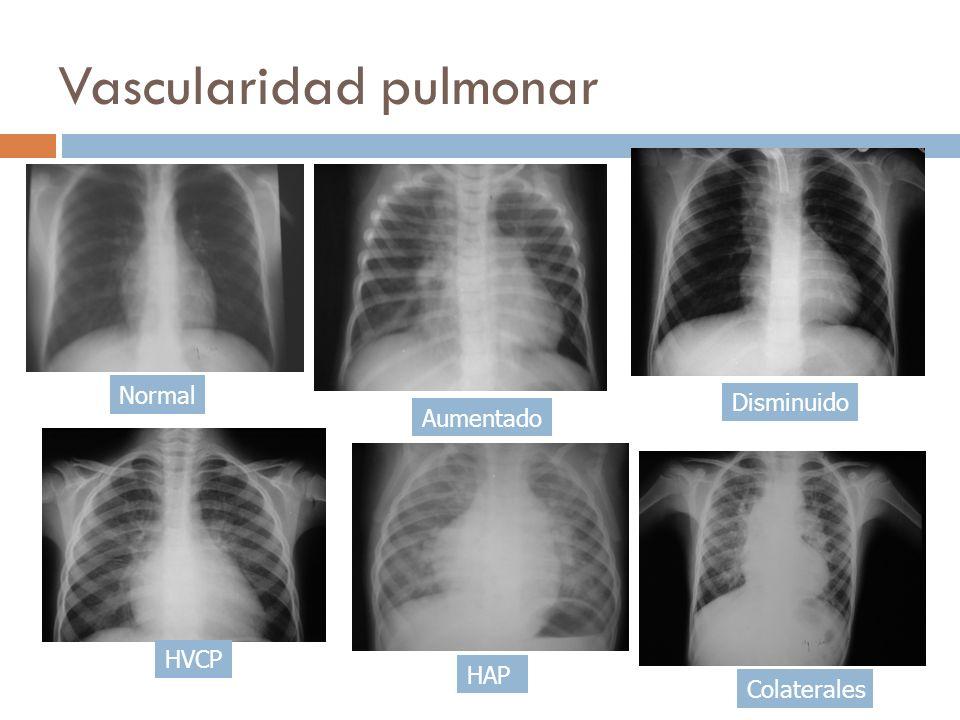 Vascularidad pulmonar