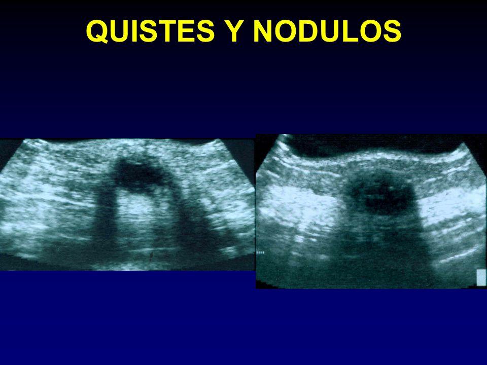 QUISTES Y NODULOS