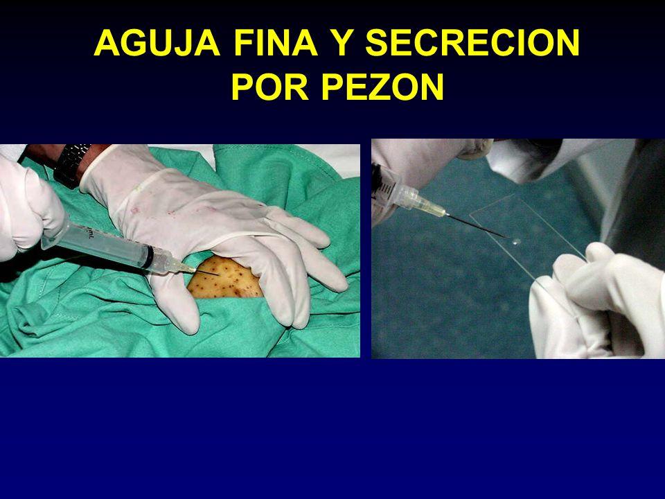 AGUJA FINA Y SECRECION POR PEZON