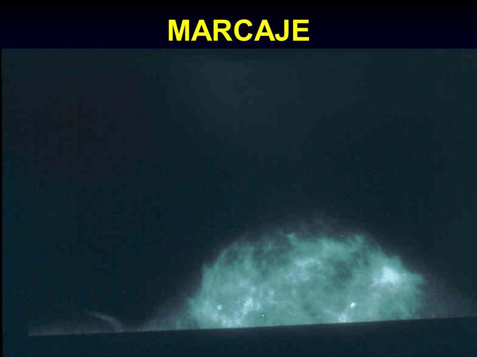 MARCAJE