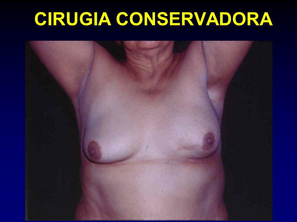 CIRUGIA CONSERVADORA