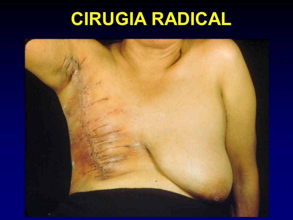 CIRUGIA RADICAL