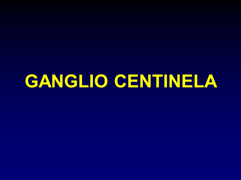 GANGLIO CENTINELA