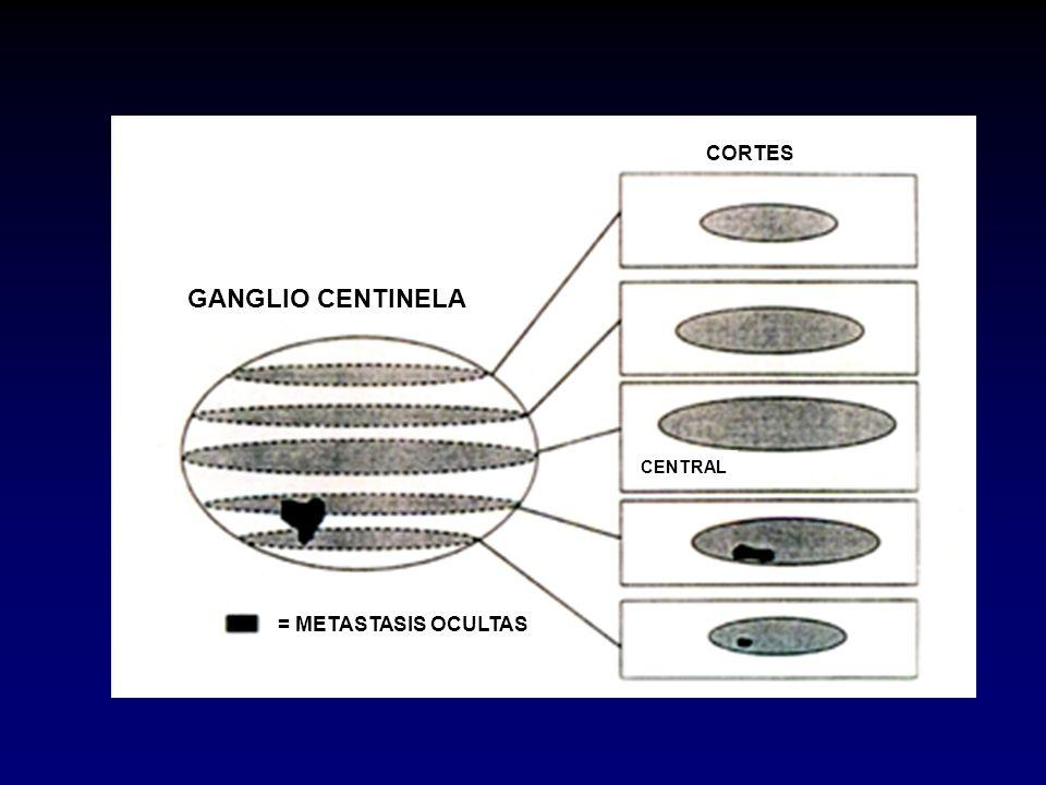 CORTES GANGLIO CENTINELA CENTRAL = METASTASIS OCULTAS