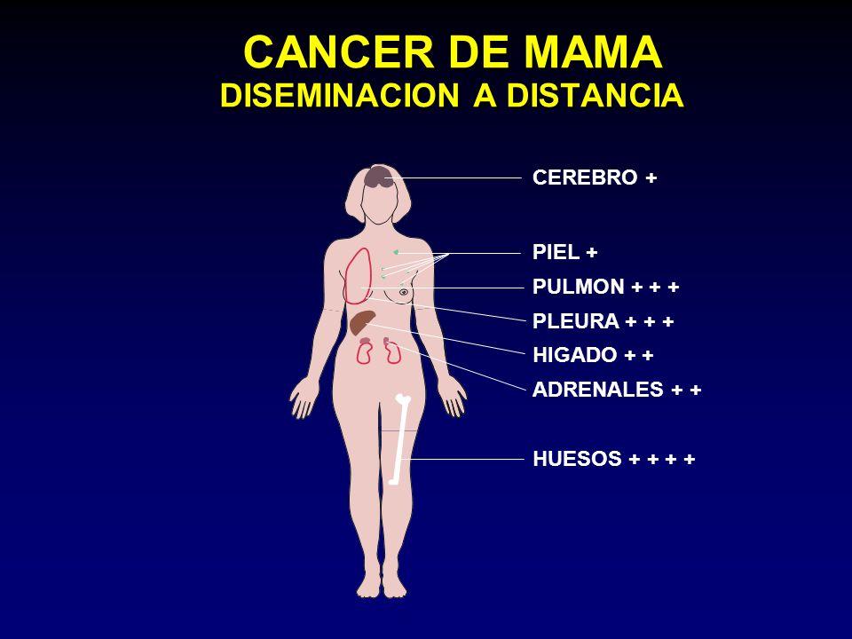 CANCER DE MAMA DISEMINACION A DISTANCIA