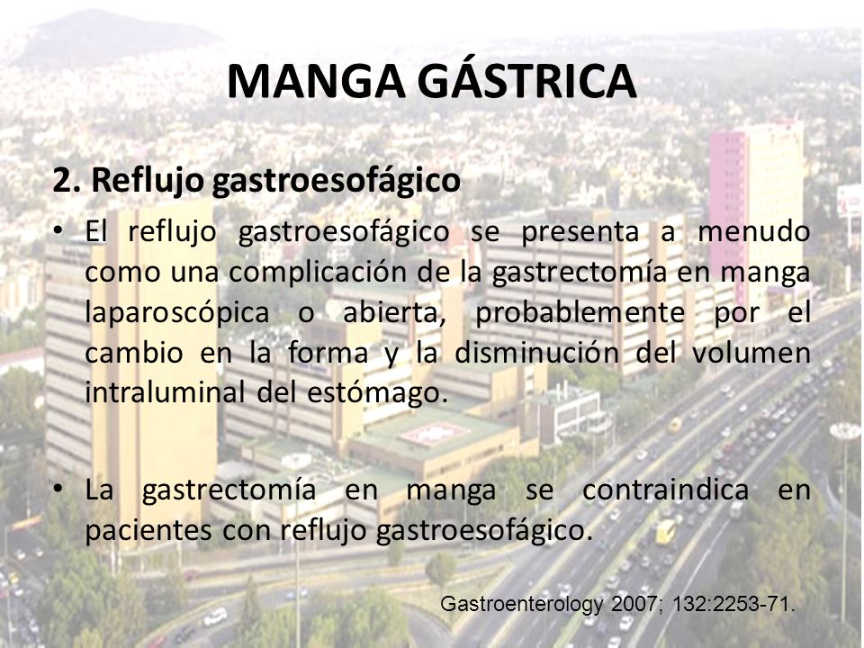 MANGA GÁSTRICA 2. Reflujo gastroesofágico