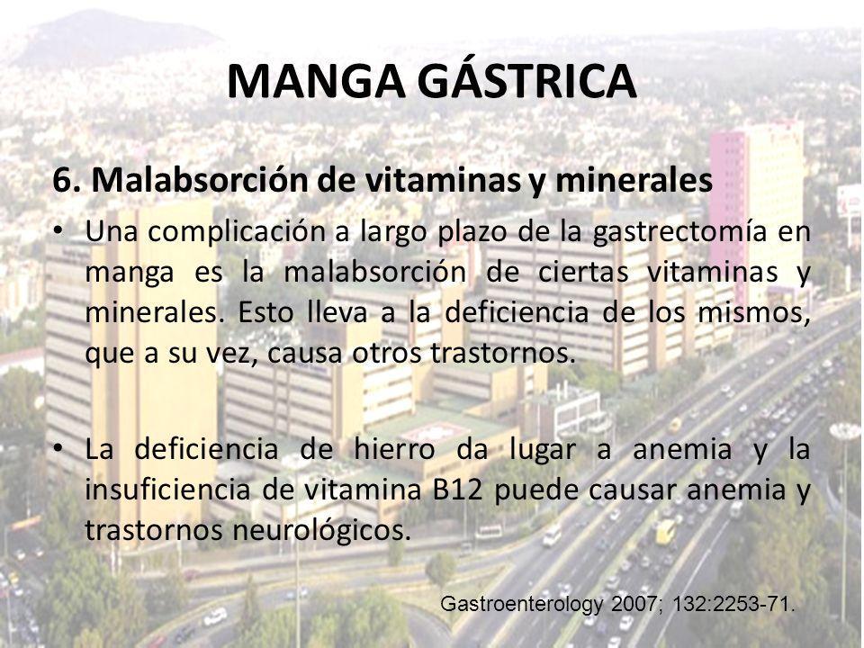 MANGA GÁSTRICA 6. Malabsorción de vitaminas y minerales