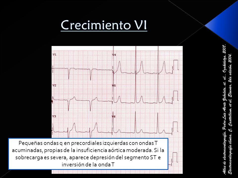 Crecimiento VI Atlas de electrocardiografía, Pedro Luis Alerte Zabaleta, et. al., Ozakidetza, 2008.