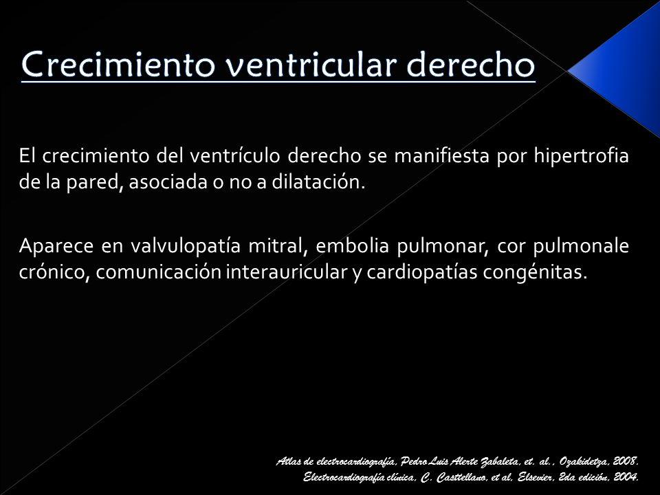 Crecimiento ventricular derecho
