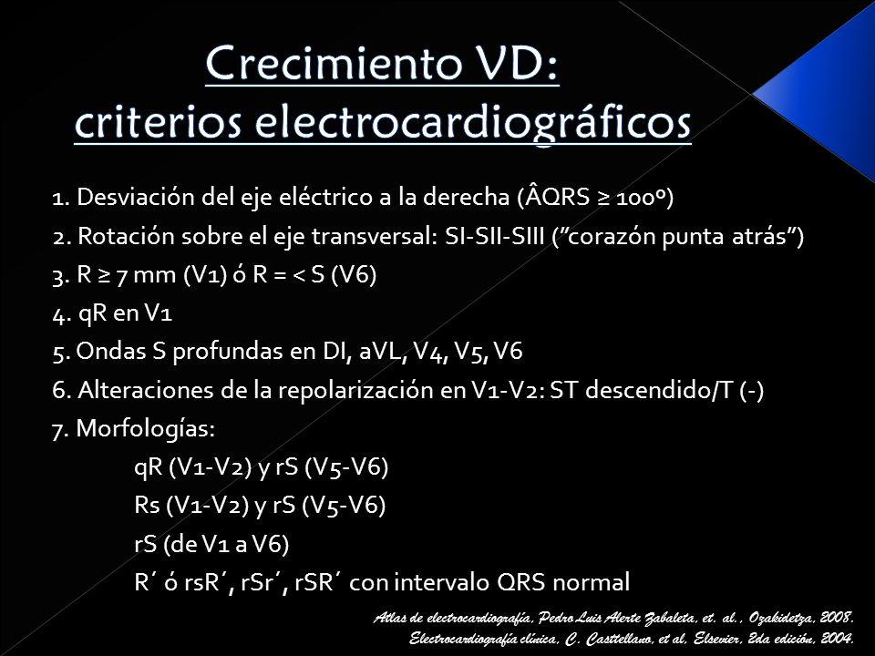 Crecimiento VD: criterios electrocardiográficos