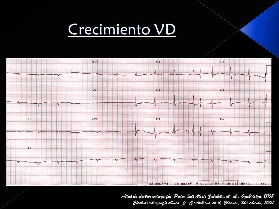 Crecimiento VD Atlas de electrocardiografía, Pedro Luis Alerte Zabaleta, et. al., Ozakidetza, 2008.