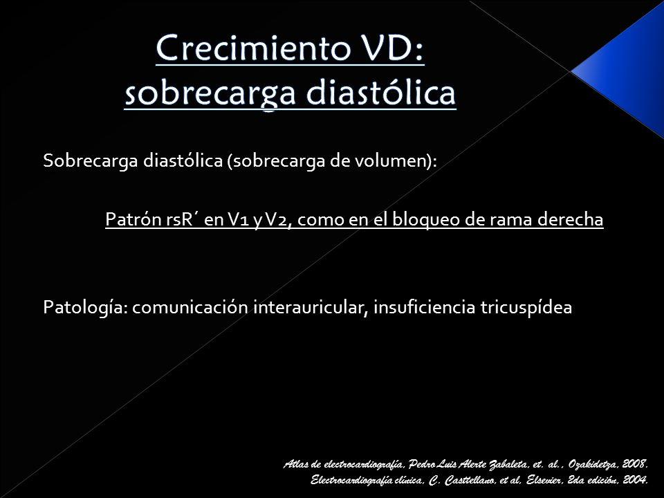 Crecimiento VD: sobrecarga diastólica