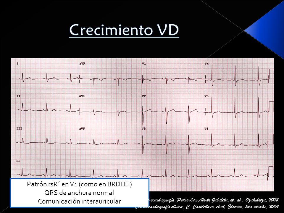 Crecimiento VD Patrón rsR´ en V1 (como en BRDHH) QRS de anchura normal