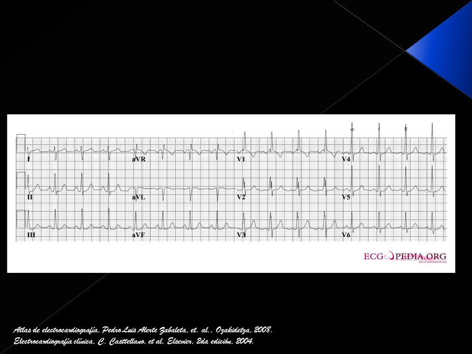 Atlas de electrocardiografía, Pedro Luis Alerte Zabaleta, et. al