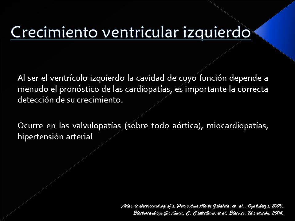 Crecimiento ventricular izquierdo
