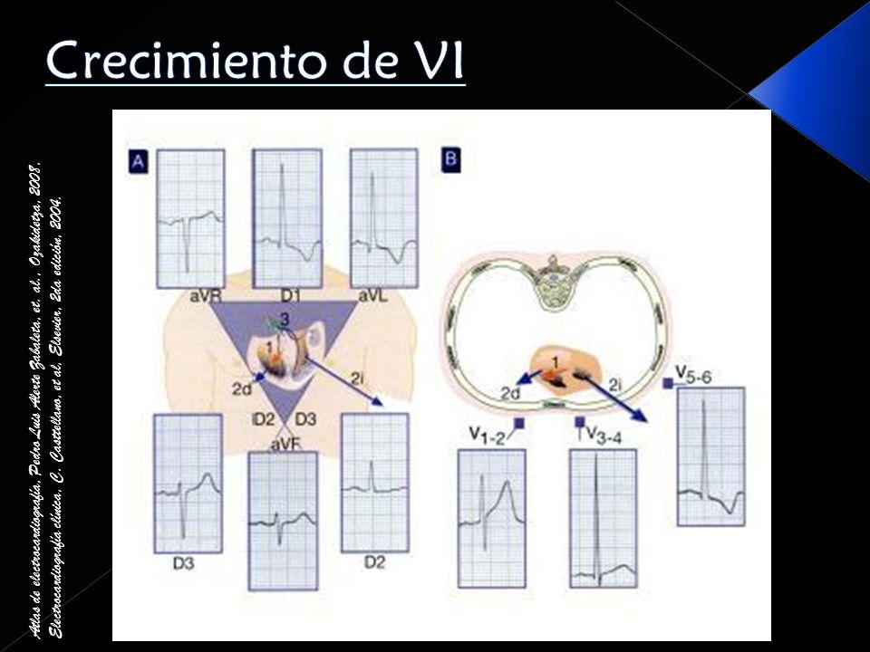 Crecimiento de VIAtlas de electrocardiografía, Pedro Luis Alerte Zabaleta, et. al., Ozakidetza, 2008.