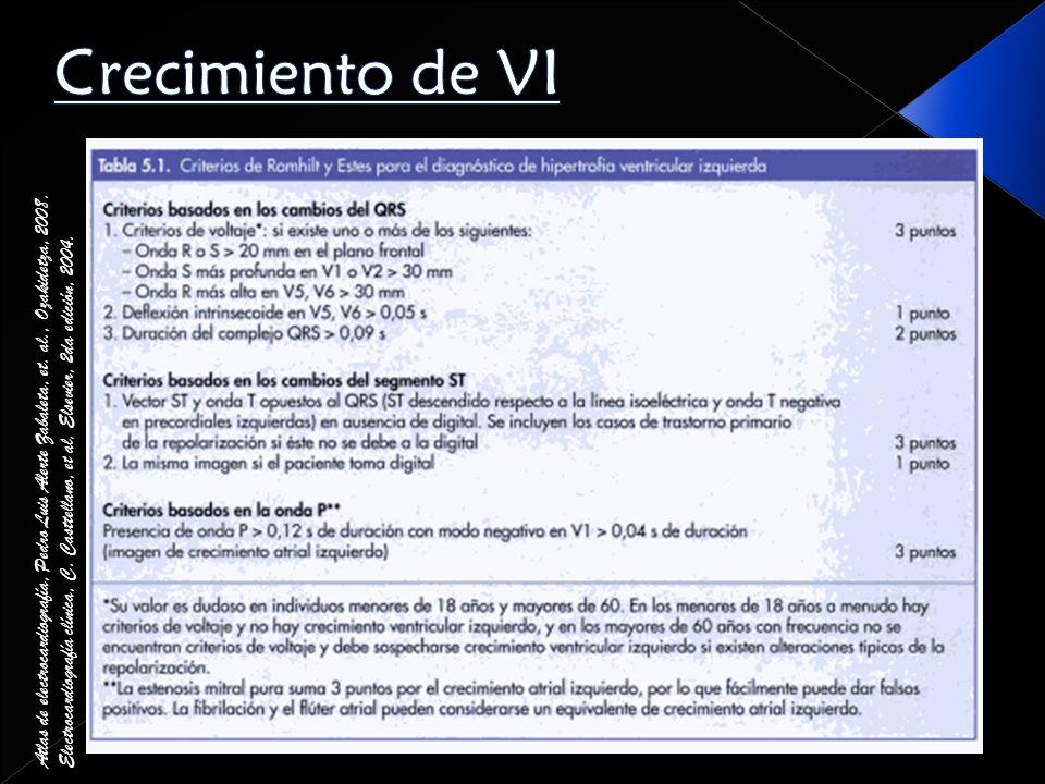 Crecimiento de VI Atlas de electrocardiografía, Pedro Luis Alerte Zabaleta, et. al., Ozakidetza, 2008.
