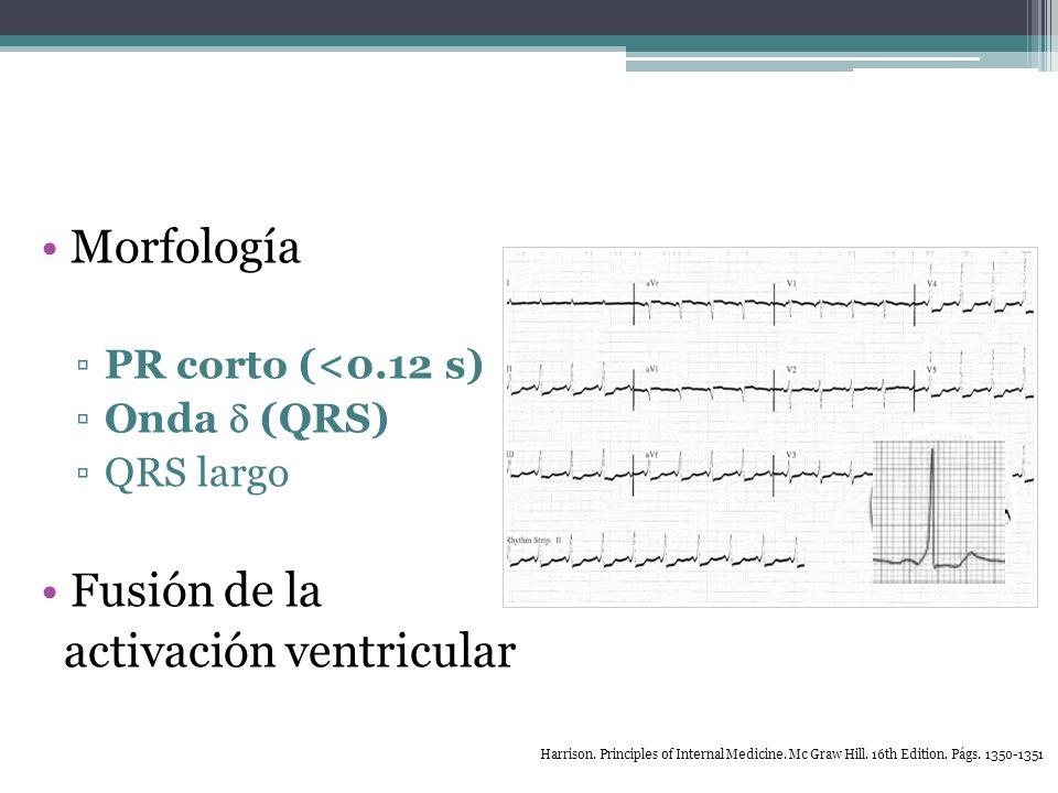 activación ventricular
