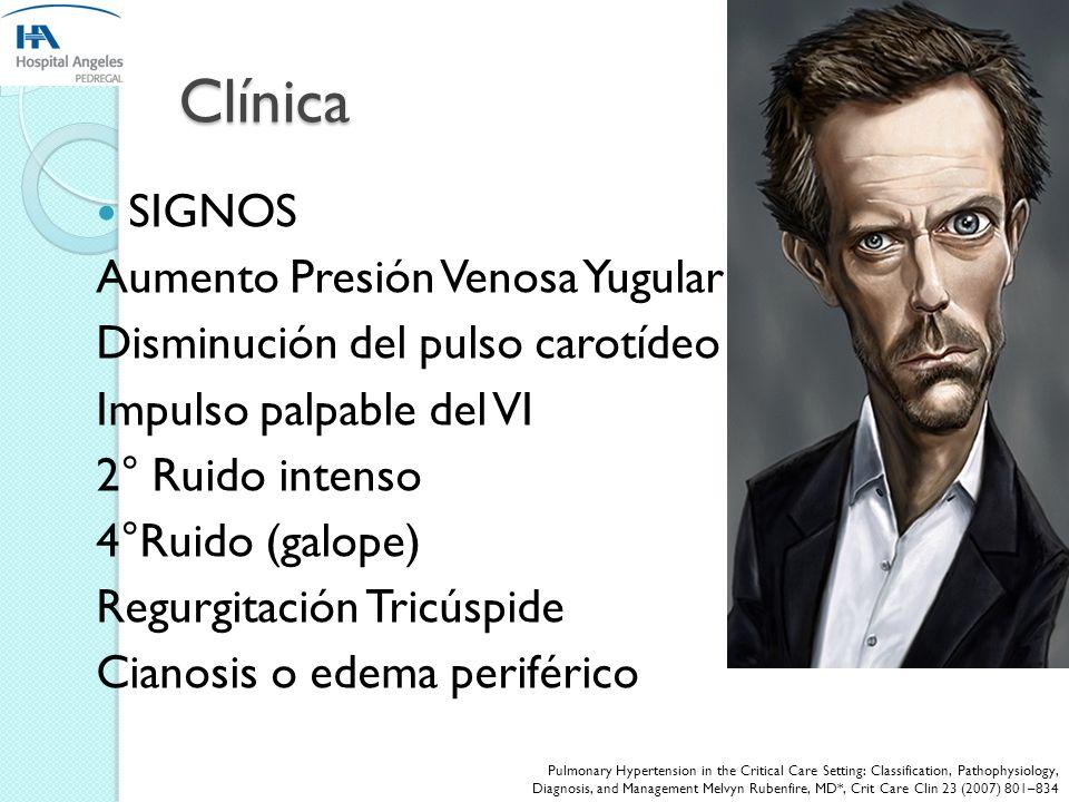 Clínica SIGNOS Aumento Presión Venosa Yugular